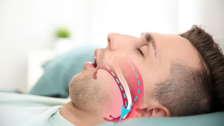 Uyku apnesi tedavisinde dil kökü cerrahileri