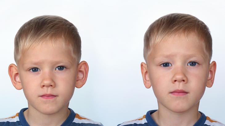 Kulak Estetiği Operasyonları